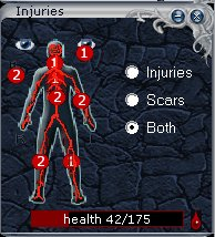Graphical dipiction of injuries sustained as seen using Stormfront Interface
